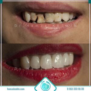 Diş Kaplama Öncesi-Sonrası